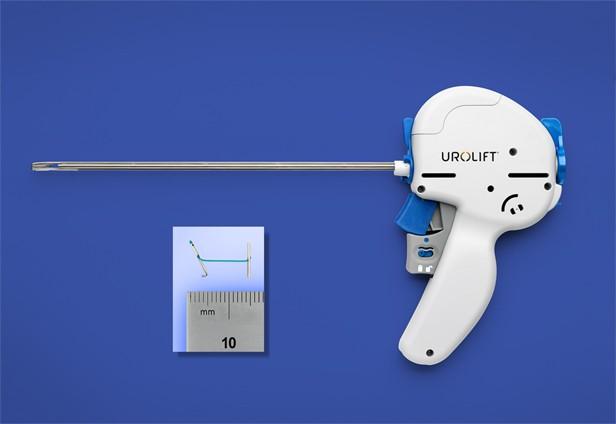 Sistema Urolift Fuente: operarme.es