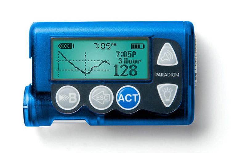 bomba insulina recurso diabetes