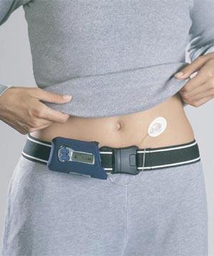 tratamiento bomba insulina recurso diabetes