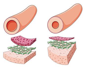 Remodelado arterial en hipertensión arterial Autor/a de la imagen: hugovillarroelabrego Fuente: Wikipedia