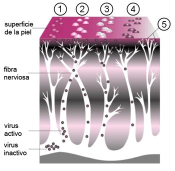 Evolución del herpes zóster: un grupo de pequeñas protuberancias (1) se convierten en ampollas (2) que se asemejan a lesiones de la varicela; las ampollas se llenan de pus, se abren (3), forman una costra (4), y finalmente desaparecen pudiendo producir daño a los nervios (5). Autor/a de la imagen: A_Course_of_Shingles_diagram.png: Renee Gordon derivative work: DPC (talk) Fuente: Wikipedia / David Perez