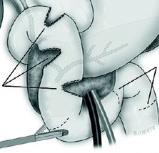 Alargamiento de duodeno (Imagen modificada) Autor/a de la imagen original: ilustracionmedica.es Fuente: Imagen difundida por el Hospital Vall d'Hebron
