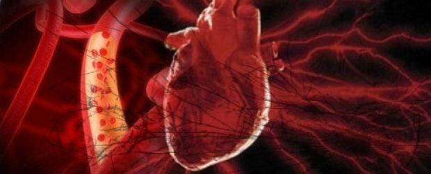 cont_micrositio-de-enfermedades-y-trasplantes1_2930-620x250