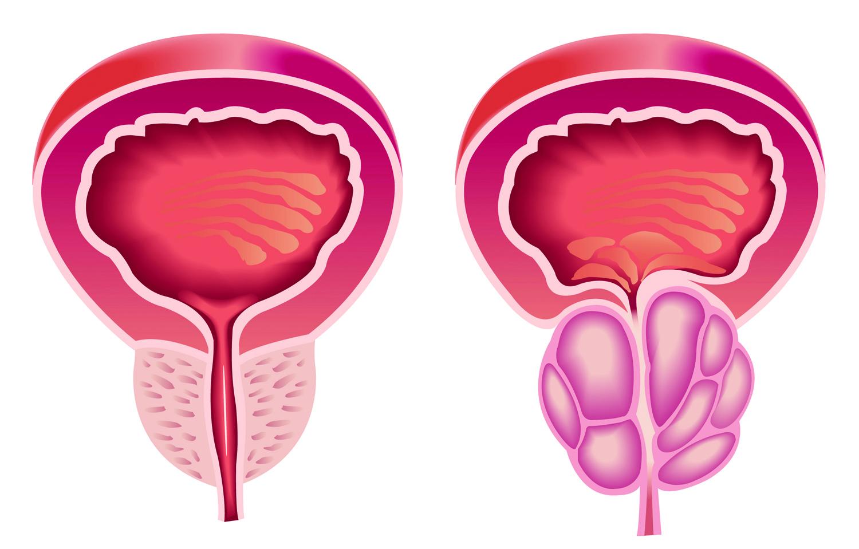 (Izquierda) Próstata Normal (Derecha) HBP