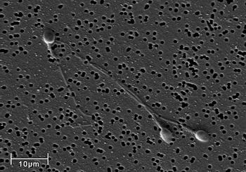 Micrografía por microscopio electrónico de barrido (SEM) de células de esperma humano (espermatozoides)  Autor/a de la imagen: No specific author (sin autor específico) Fuente: Wikimedia Commons / Forskerunv