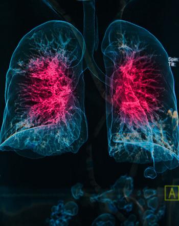 Radiografía en 3D EPOC  Fuente: Archivo