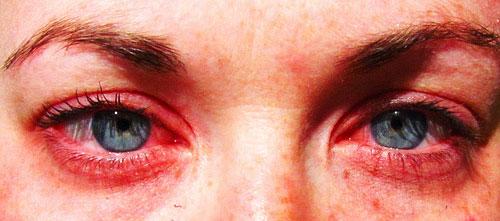 alergica