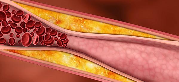 (600) colesterol y triglicéridos 2