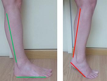 Simulación de los efectos del cambio de calzado Fuente: Hospital Sant Rafael de Germanes Hospitalàries / Mapa Media