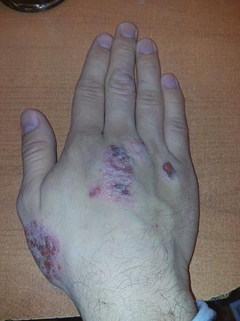Mano con dermatitis atópica Autor/a: Tipo-Holic Fuente: Wikipedia