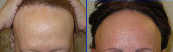 Dos casos de alopecia frontal fibrosante Fuente: Cortesía del Dr. Grimalt