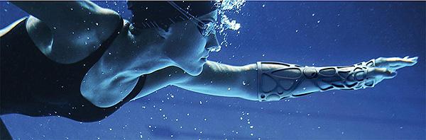 XKELET, usada en un brazo Fuente: www.xkelet.com