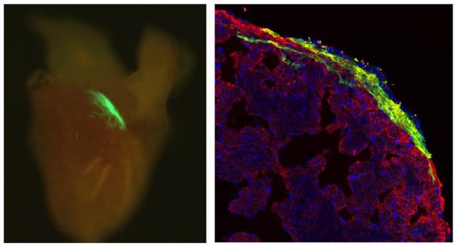 Corazón de pez cebra adulto: en verde la descendencia de las células marcadas (izquierda). Ampliación de la zona marcada, mostrando células cardíacas fotoactivadas en verde, entremezcladas con células sin marcar (derecha) Fuente: IBEC