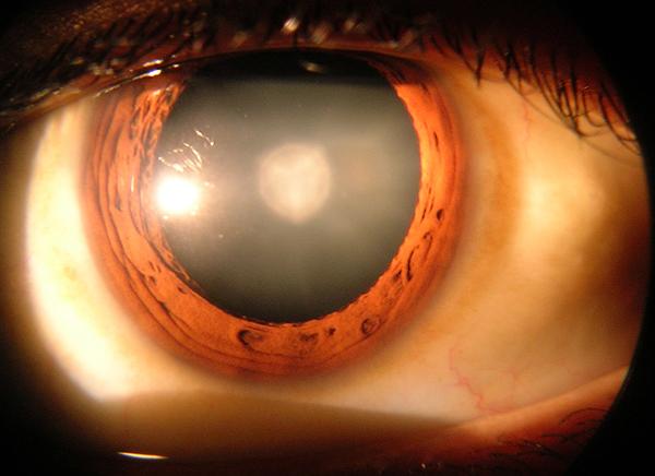 Un ojo humano con cataratas visto a través de una lámpara de hendidura Autor/a de la imagen: Rakesh Ahuja, MD Fuente: Wikipedia