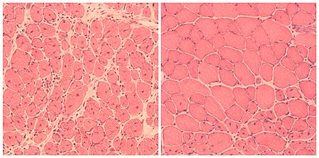 Músculo dañado en ratones envejecidos (izquierda) y músculo regenerado en ratones tratados con la técnica de reprogramación (derecha) Autor/a de la imagen: Salk Institute Fuente: Hospital Clínic