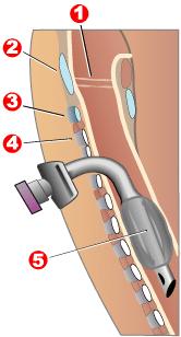 Traqueostomía: 1.- Cuerdas vocales 2.- Cartílago tiroides 3.- Cartílago cricoides 4.- Anillos traqueales 5.- Manguito Autor/a de la imagen: Jeremykemp - http://en.wikipedia.org/wiki/Image:Tracheotomy_neck_profile.png Fuente: Wikipedia