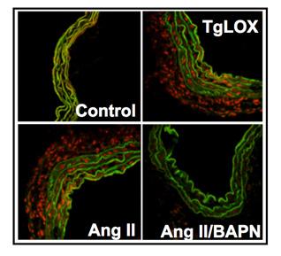 Las arterias de ratones que sobre-expresan lisil oxidasa (TgLOX) muestran mayores niveles de estrés oxidativo (tinción roja) que los animales control. El aumento del estrés oxidativo observado en un modelo de hipertensión arterial por infusión de Angiotensina II, se reduce drásticamente en presencia de un inhibidor farmacológico de la lisil oxidasa (BAPN).  Autoría de la imagen: UAM-ICCC-CSIC Fuente: UAM-ICCC-CSIC / Centro de Investigación Biomédica en Red (CIBER)