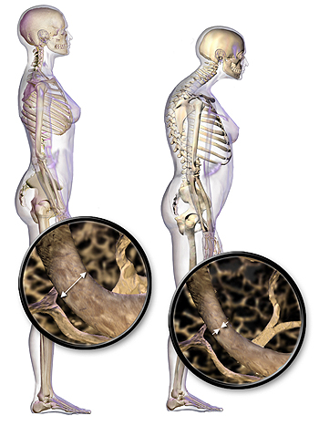 """Efectos de la osteoporosis Autor/a de la imagen: BruceBlaus [When using this image in external sources it can be cited as: Blausen.com staff (2014). """"Medical gallery of Blausen Medical 2014"""". WikiJournal of Medicine 1 (2). DOI:10.15347/wjm/2014.010. ISSN 2002-4436.] Fuente: Wikipedia"""