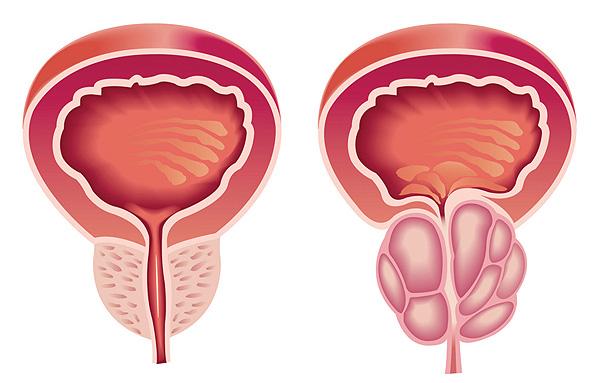 Ilustración centrada en la próstata Fuente: Archivo