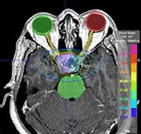 Una imagen asociada a la radiocirugía Fuente: Grupo Arán