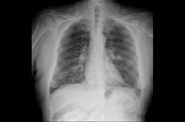 RX de asma grave Fuente: www.farmacosalud.com