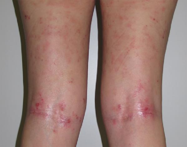Un caso de dermatitis atópica Fuente: cortesía de la Dra. Serra-Baldrich Hospital Sant Pau. Dermatología