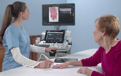 Nuevo sistema de ecografía Fuente: GE Healthcare / Docor Comunicación