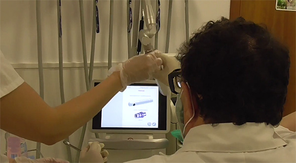 frame video 1 ok Una sesión de aplicación del láser para atrofia vaginal de moderada a severa