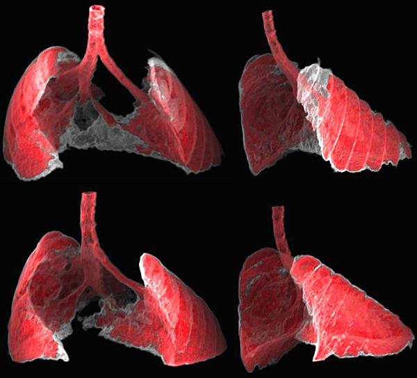 La figura muestra dos vistas, frontal y lateral, de la imagen obtenida por TAC de los pulmones de un ratón con fibrosis (zonas grises) antes y después de ser tratado con nanoterapia dirigida a las células senescentes. Las células senescentes son en parte responsables de la fibrosis pulmonar (Guillermo Garaulet y Francisca Mulero, CNIO) Fuente: IRB Barcelona