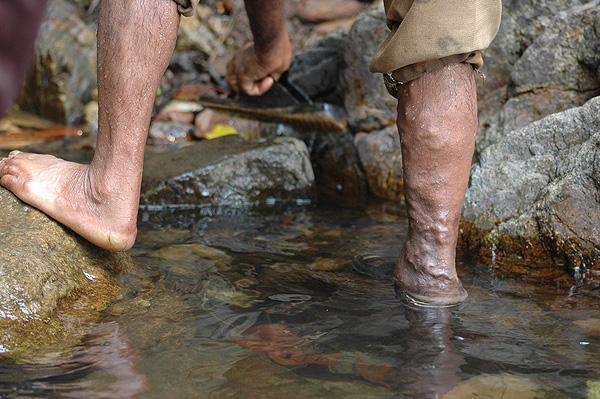 Una pierna (a la derecha de la imagen) con varices Autor/a de la imagen: Jackerhack (Wikipedia) / Kiran Jonnalagadda (Flickr-Creative Commons) Fuente: Wikipedia – Flickr / Creative Commons