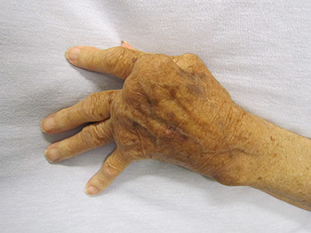 Mano afectada por la artritis reumatoide Autor/a de la imagen: James Heilman, MD - Trabajo propio Fuente: Wikipedia