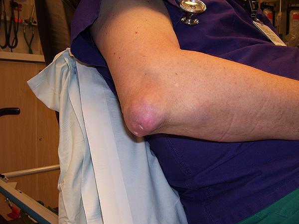 Tofo localizado en el codo de un paciente con gota Autor/a de la imagen: NickGorton - NickGorton Fuente: Wikipedia