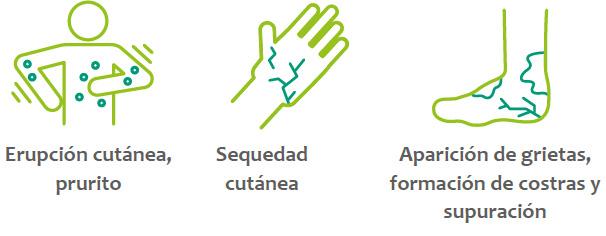 Acerca de la dermatitis atópica de intensidad moderada a grave Fuente: Sanofi / sanofinoticias.es