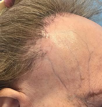 Alopecia frontal fibrosante Fuente: Dr. Vañó