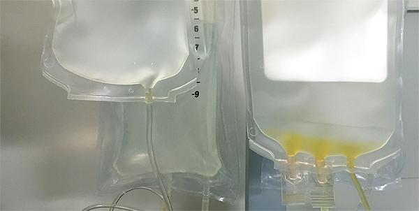 Material para el proceso de infusión intravenosa (imagen modificada) Autor/a de la imagen original: NIAID Fuente. Flickr / Creative Commons