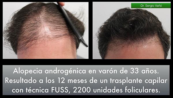 Fuente: Dr. Vañó