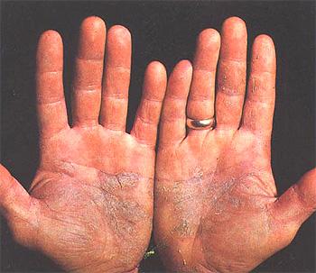 Placas de psoriasis en las palmas de las manos (imagen modificada) Autor/a del original: US Military - http://history.amedd.army.mil/booksdocs/wwii/internalmedicinevolIII/chapter20figure100.jpg Fuente: Wikipedia