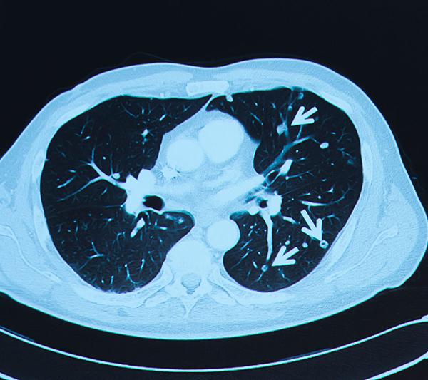 TAC relativo al cáncer colorrectal Fuente: Archivo