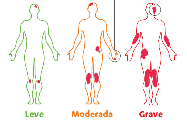 Gravedad de la psoriasis Fuente: National Institute of Arthritis and Musculoskeletal and Skin Disorders. Questions and Answers About Psoriasis. U.S. Department of Health and Human Services, National Institutes of Health. 2003. Difusión: Janssen - Johnson & Johnson / Berbés Asociados