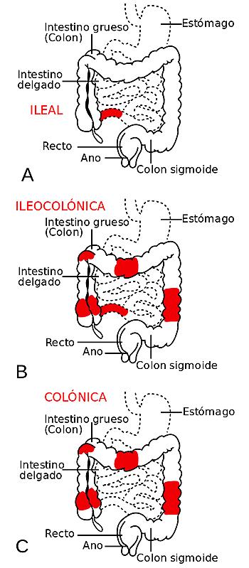 Los tres tipos más frecuentes de Crohn atendiendo a la zona afectada de los intestinos: A- ileal, B- ileocolónica y C- colónica Autor/a de la imagen: Patterns_of_CD.svg: Samir, vectorized by Fvasconcellos derivative work: Ortisa (talk) - Patterns_of_CD.svg Fuente: Wikipedia