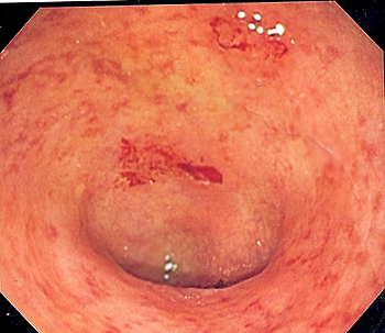 Imagen Endoscópica de colon sigmoide afecto de colitis ulcerosa Endoscopic image of ulcerative colitis showing loss of vascular pattern of the sigmoid colon, granularity and some friability of the mucosa. -- Samir  User: Kauczuk Fuente: Wikipedia