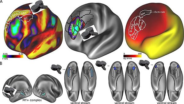 Dianas potenciales en regiones corticales visuales para el tratamiento con TMS (estimulación magnética transcraneal) basadas en el estudio de las conectividades que predicen la respuesta al tratamiento electroconvulsivo Fuente: CIBERSAM / Centro de Investigación Biomédica en Red (CIBER)