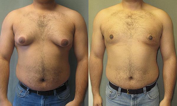 Comparación de un hombre con ginecomastia antes y después de una intervención Autor/a de la imagen: JMZ1122 Dr. Mordcai Blau www.cosmetic-md.com  Fuente: Wikipedia