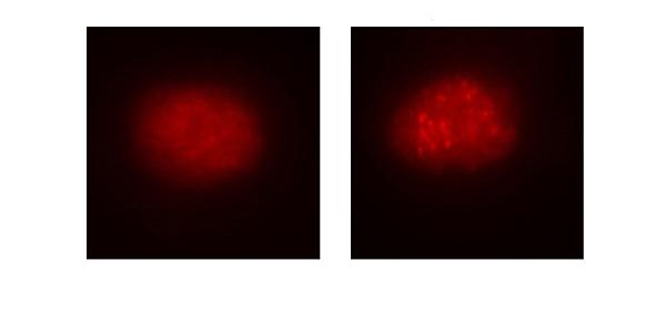 (A la izq.), célula de la sangre de un paciente con anemia de Fanconi antes de la corrección mediante el uso del sistema CRISPR/Cas9. (Dcha.), la célula ya corregida. Se observa cómo se repara la función de la ruta de la anemia de Fanconi Fuente: CIBERER / Centro de Investigación Biomédica en Red (CIBER) / CIEMAT / IIS-FJD