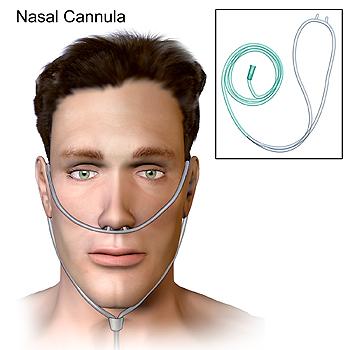 Sonda nasal en forma de 'gafas' nasales o 'gafas de oxígeno' Autor/a de la imagen: BruceBlaus  Fuente: Wikipedia