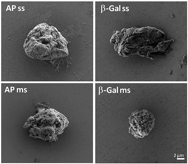 Cuerpos de inclusión artificiales, imágenes de microscopía de barrido de alta resolución  (HRSEM o FESEM) – IBB-UAB Fuente: CIBER-BBN / CIBER (Consorcio Centro de Investigación Biomédica en Red, M.P.)