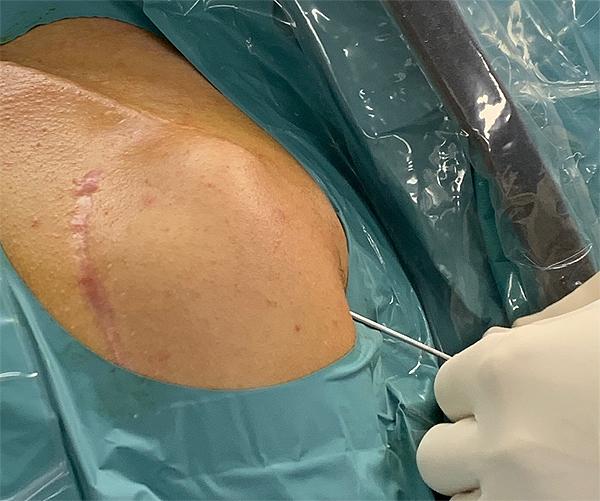Uso práctico de NanoScope. Plano detalle Fuente: Hospital El Pilar-Grupo Quirónsalud